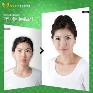 Plastic Surgery in South Korea (31 photos) 31