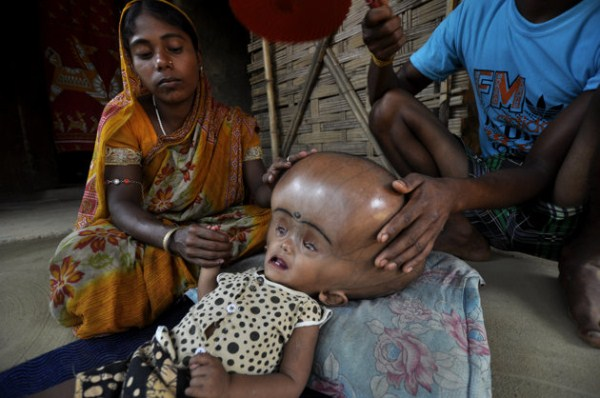 347 Μωρό με το γιγαντιαίο κεφάλι (10 φωτογραφίες)