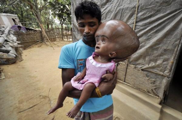 426 Μωρό με το γιγαντιαίο κεφάλι (10 φωτογραφίες)