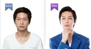 Plastic Surgery in South Korea (31 photos) 4