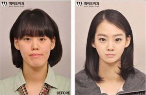 Plastic Surgery in South Korea (31 photos) 6