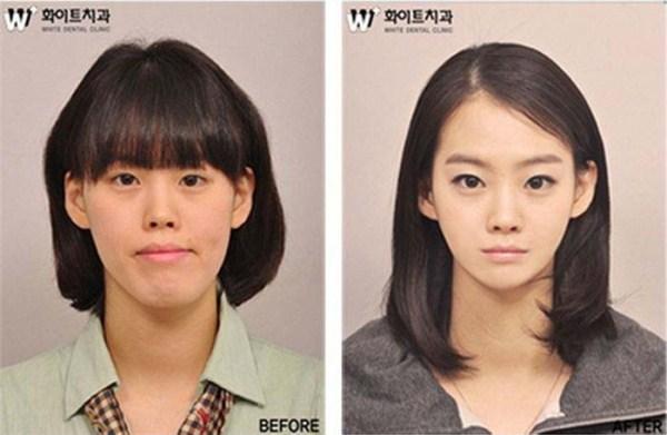69 Πλαστική Χειρουργική στη Νότια Κορέα (31 φωτογραφίες)