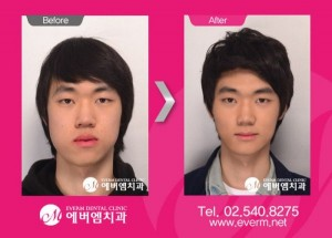 Plastic Surgery in South Korea (31 photos) 7
