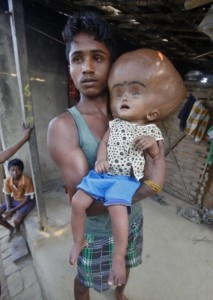 Baby With Giant Head (10 photos) 9
