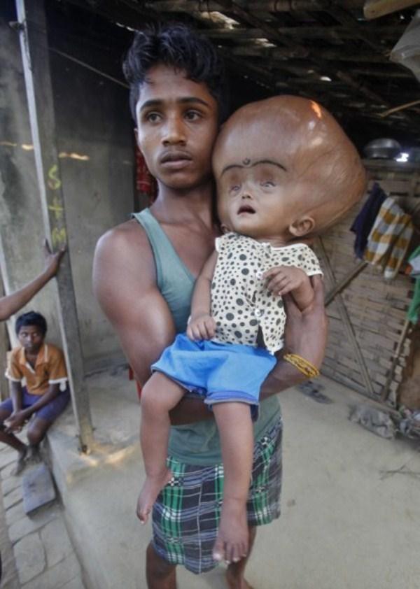 925 Μωρό με το γιγαντιαίο κεφάλι (10 φωτογραφίες)