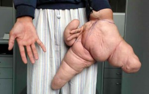 Deformities and Genetic Mutations (32 photos) 10