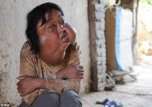 Deformities and Genetic Mutations (32 photos) 11