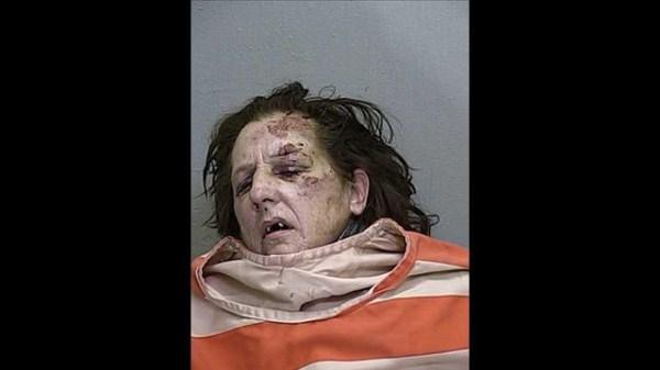 216 Terrifying Faces of Meth (45 photos)