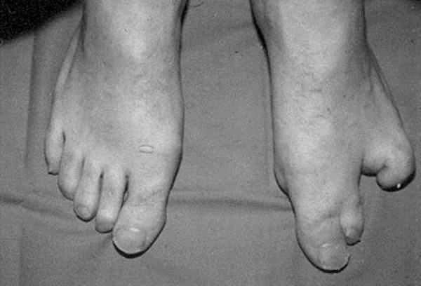 deformities and ge ic mutations 32 photos klyker com