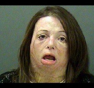 Terrifying Faces of Meth (45 photos)