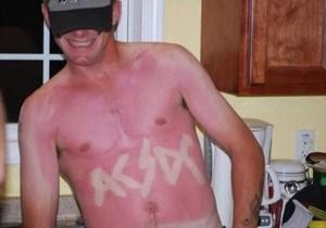 Painfully Funny Sunburns (20 photos) 11