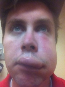 People Stung by Bees (26 photos) 2