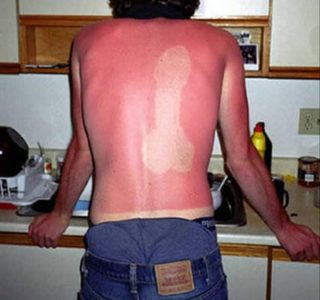 Painfully Funny Sunburns (20 photos)