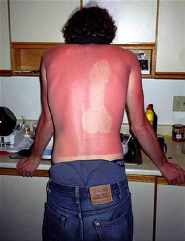 Painfully Funny Sunburns (20 photos) 19