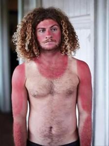 Painfully Funny Sunburns (20 photos) 2