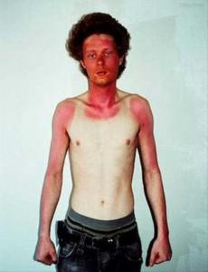 Painfully Funny Sunburns (20 photos) 5