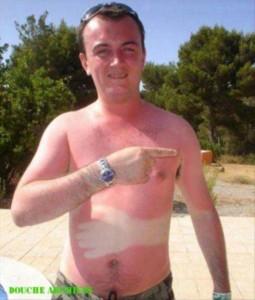 Painfully Funny Sunburns (20 photos) 7