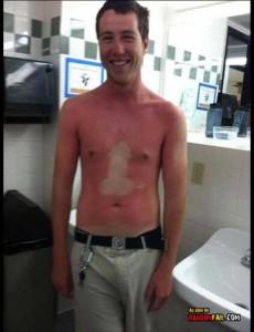 Painfully Funny Sunburns (20 photos) 8