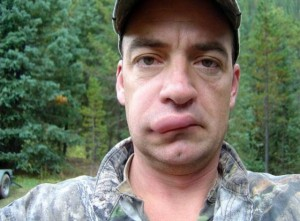 People Stung by Bees (26 photos) 3