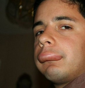 People Stung by Bees (26 photos) 8