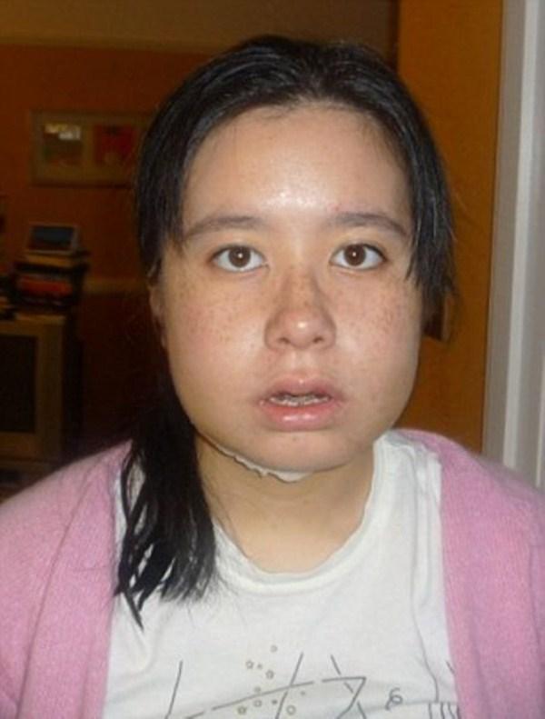face-surgery-7