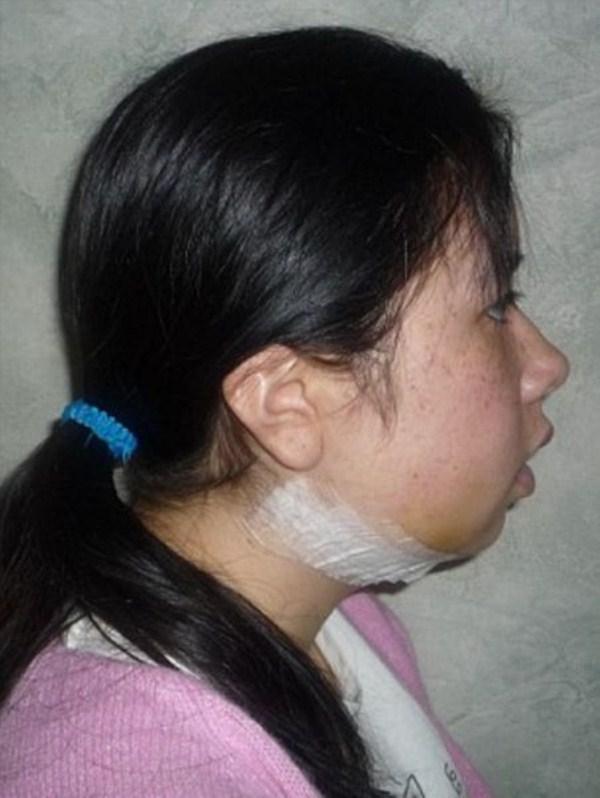 face-surgery-8