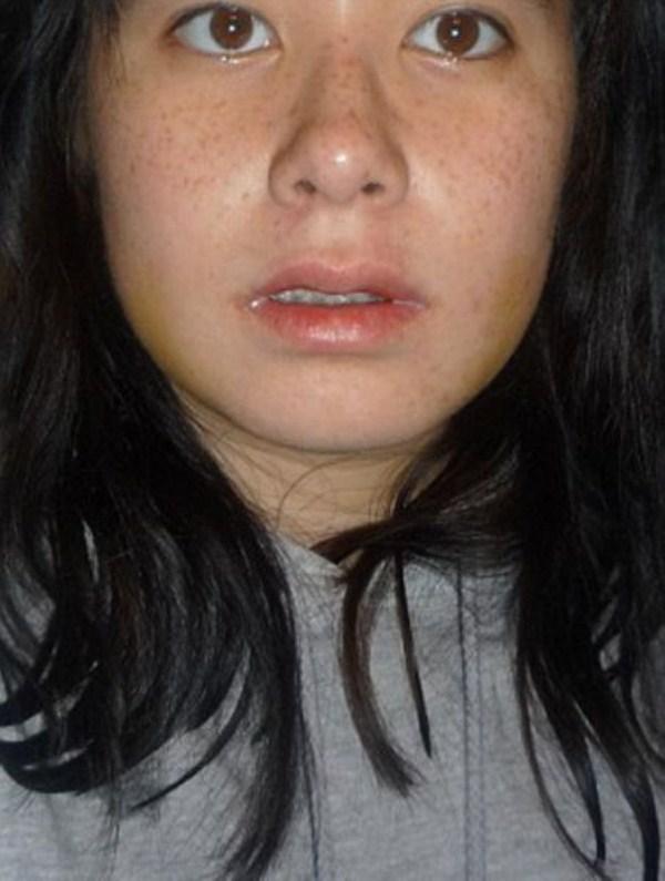 face-surgery-9