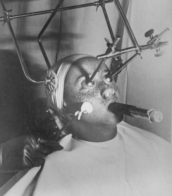 Beauty Treatments a Century Ago (11 photos) 1