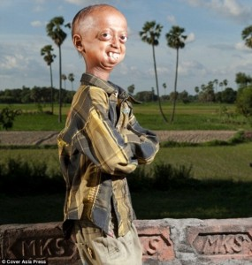 The Boy with the Body of a 110-year-old (7 photos) 1
