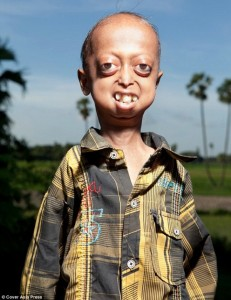 The Boy with the Body of a 110-year-old (7 photos) 2