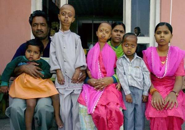 Το αγόρι με το Σώμα του έτους 110 παλιές (7 φωτογραφίες)