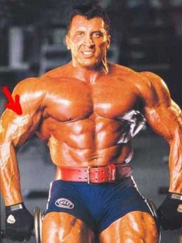 man injects steroids into bicep