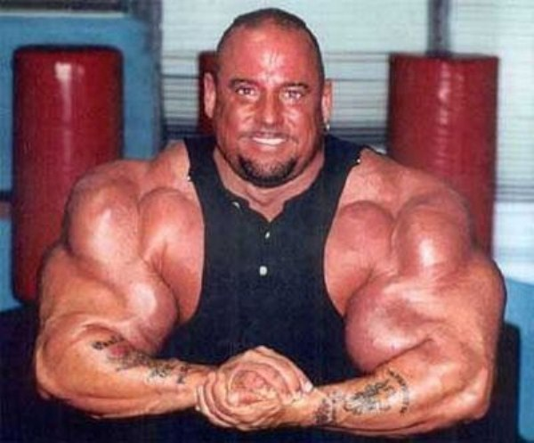 Synthol Gone Wrong (57 photos) 28