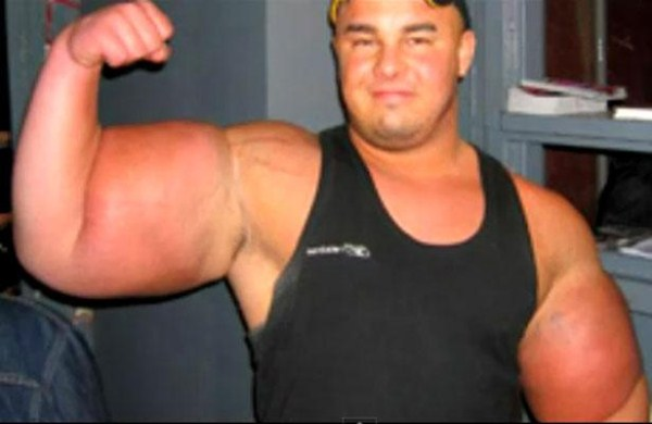 synthol_muscles (4)