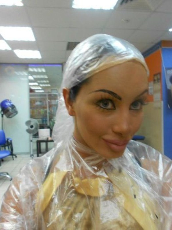 plastic-surgery-disaster-18
