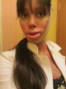 Plastic Surgery Disaster (51 photos) 51