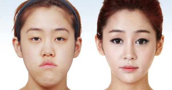 before_and_after_photos_of_korean_plastic_surgery_part_2_640_01
