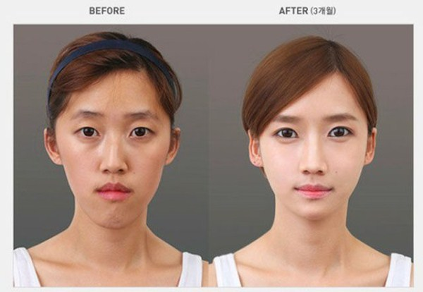 before_and_after_photos_of_korean_plastic_surgery_part_2_640_02
