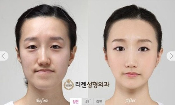 before_and_after_photos_of_korean_plastic_surgery_part_2_640_03