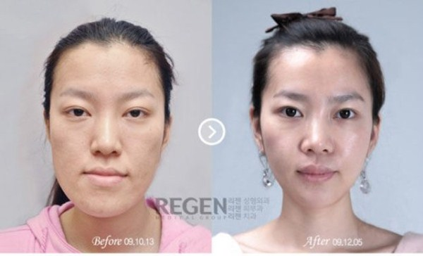 before_and_after_photos_of_korean_plastic_surgery_part_2_640_04