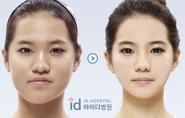 before_and_after_photos_of_korean_plastic_surgery_part_2_640_05