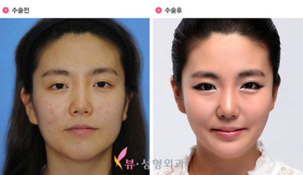 before_and_after_photos_of_korean_plastic_surgery_part_2_640_06