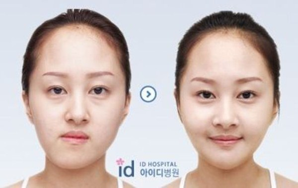 before_and_after_photos_of_korean_plastic_surgery_part_2_640_07