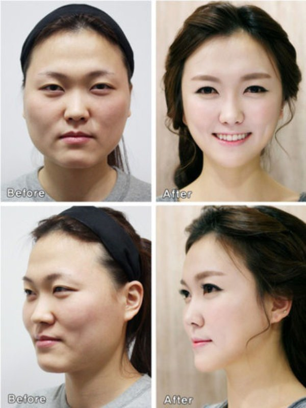 before_and_after_photos_of_korean_plastic_surgery_part_2_640_08