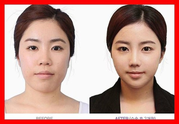 before_and_after_photos_of_korean_plastic_surgery_part_2_640_09