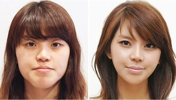 before_and_after_photos_of_korean_plastic_surgery_part_2_640_10