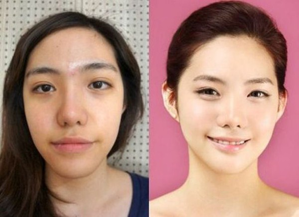 before_and_after_photos_of_korean_plastic_surgery_part_2_640_11
