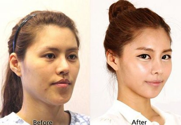 before_and_after_photos_of_korean_plastic_surgery_part_2_640_12