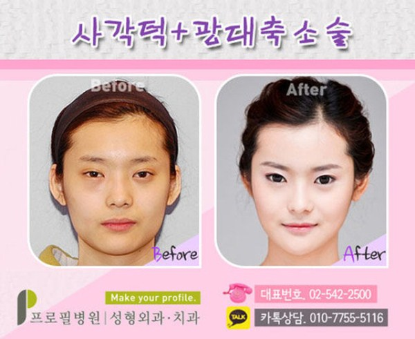 before_and_after_photos_of_korean_plastic_surgery_part_2_640_13