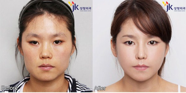 before_and_after_photos_of_korean_plastic_surgery_part_2_640_14